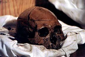 floridatraveler windover Skull